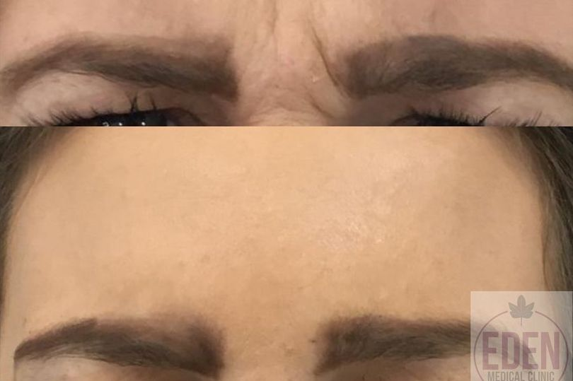 Win 1ml of filler plus a customised course of anti-wrinkle injectables from Eden Medical Clinic